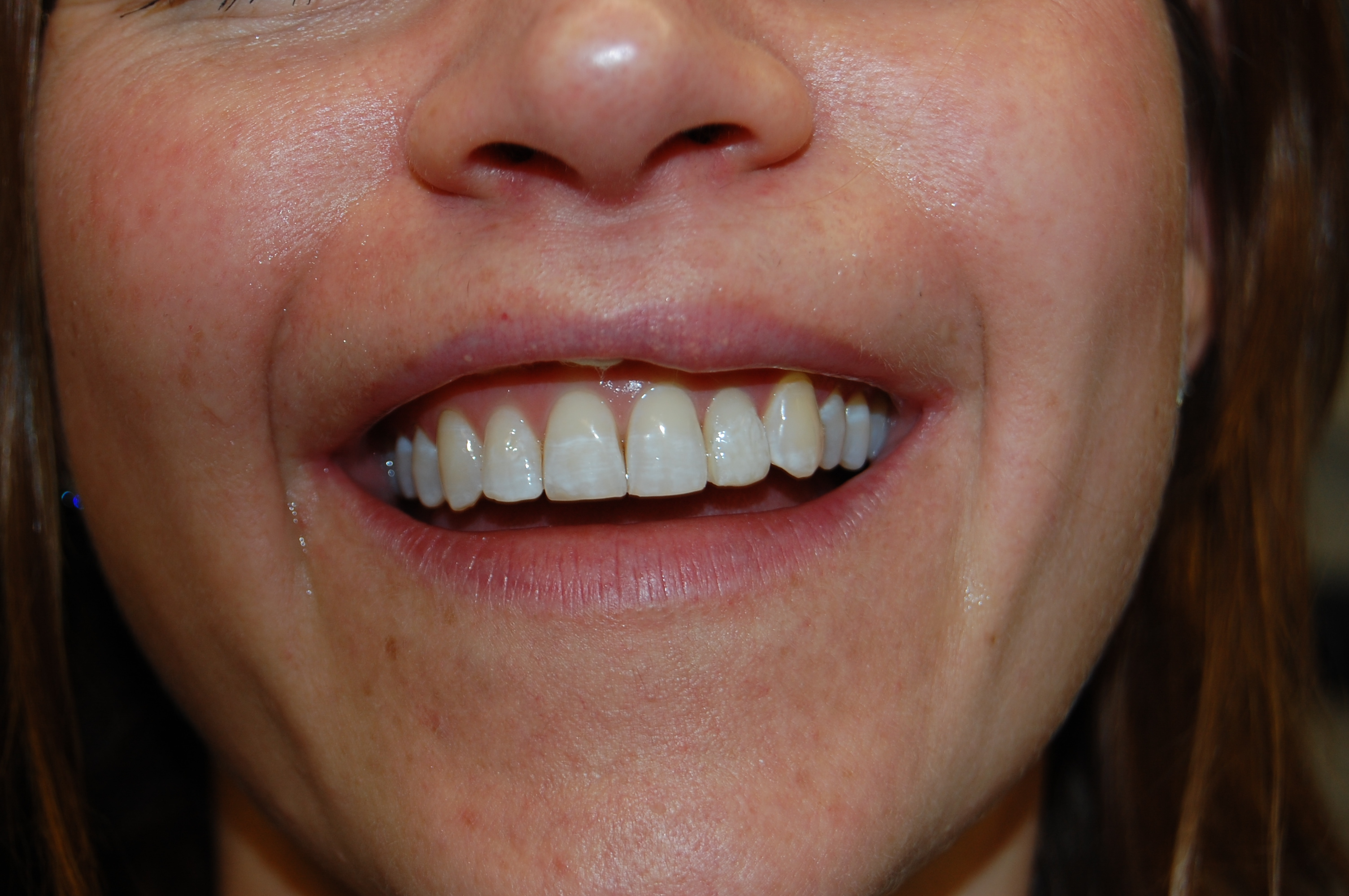 dental filling front teeth-#8